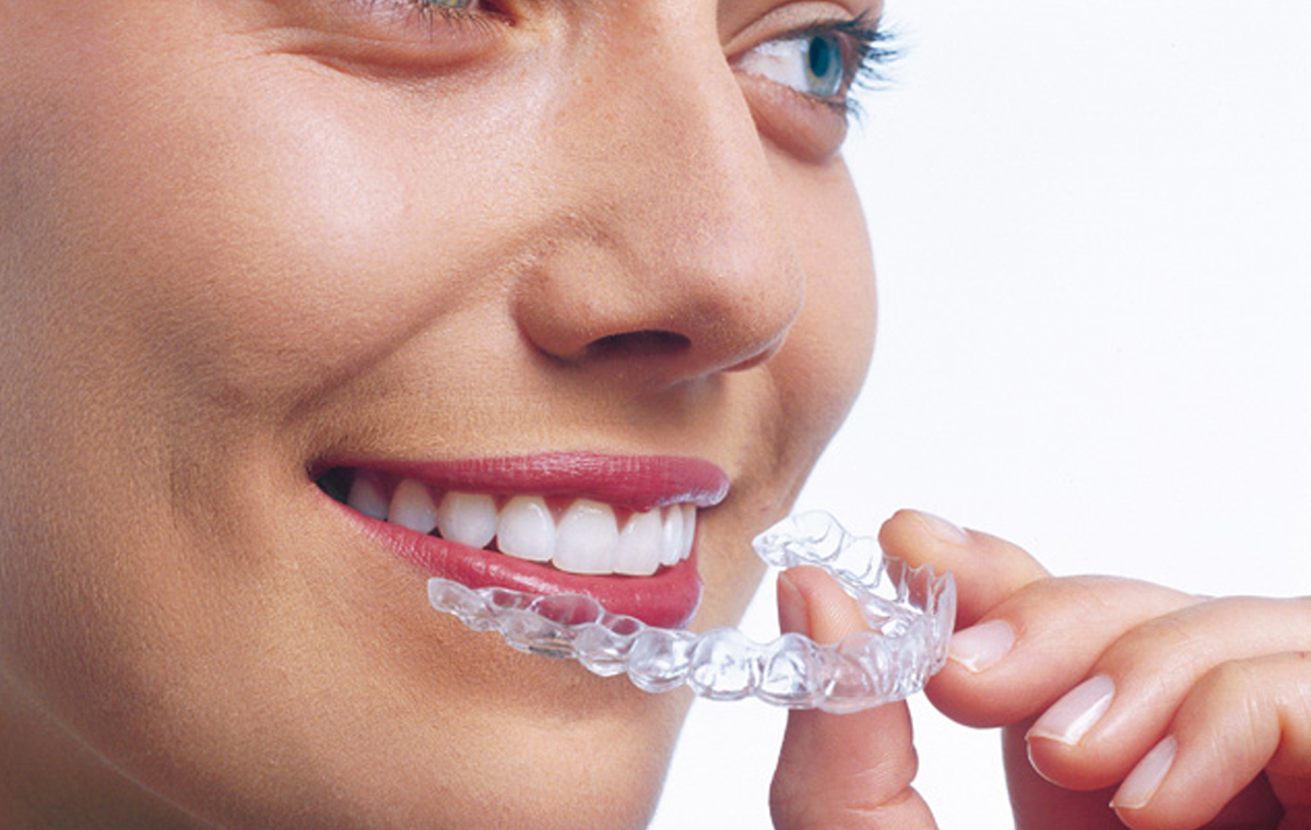 Invisalign in St Albans